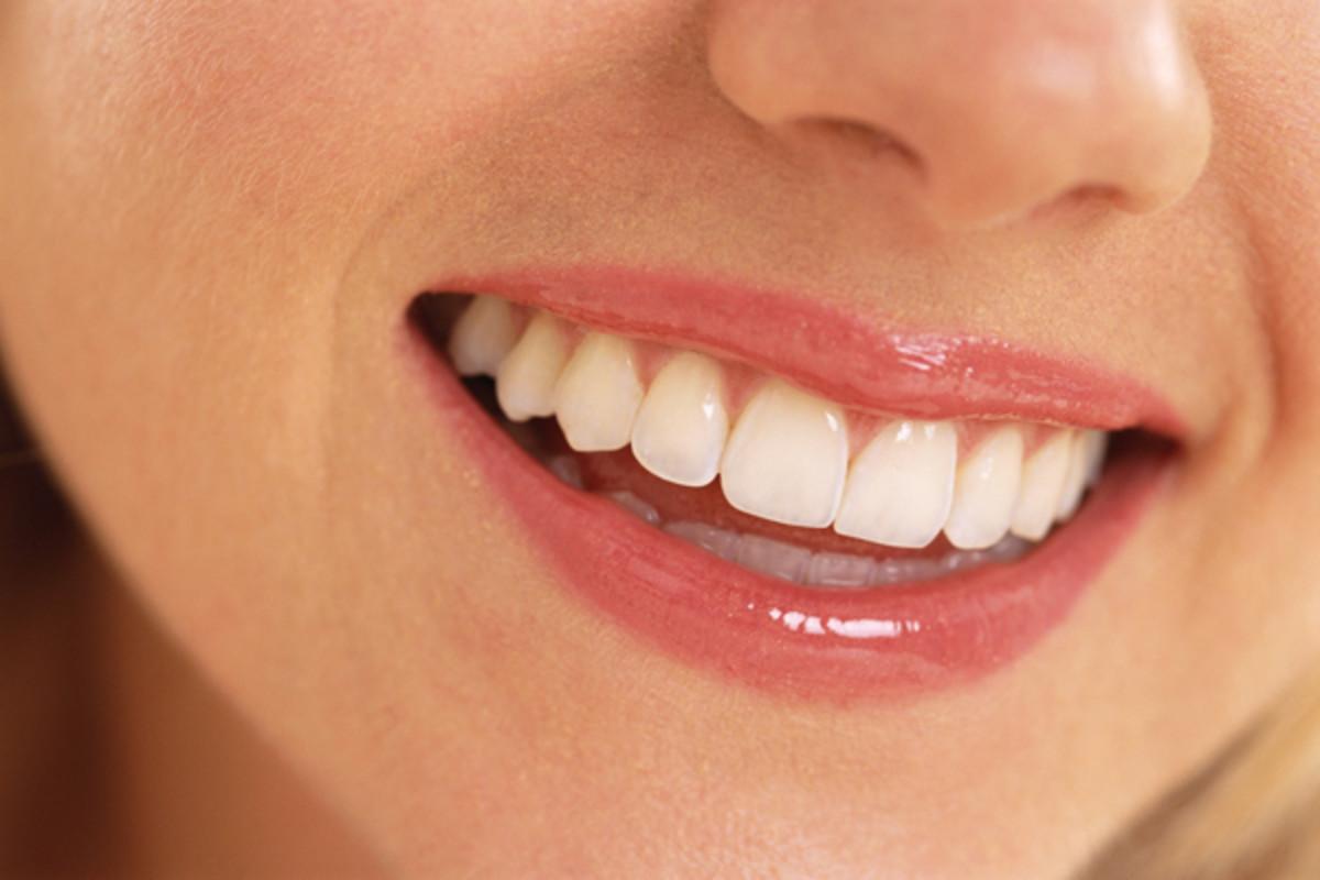 estetica-dentara-londradent