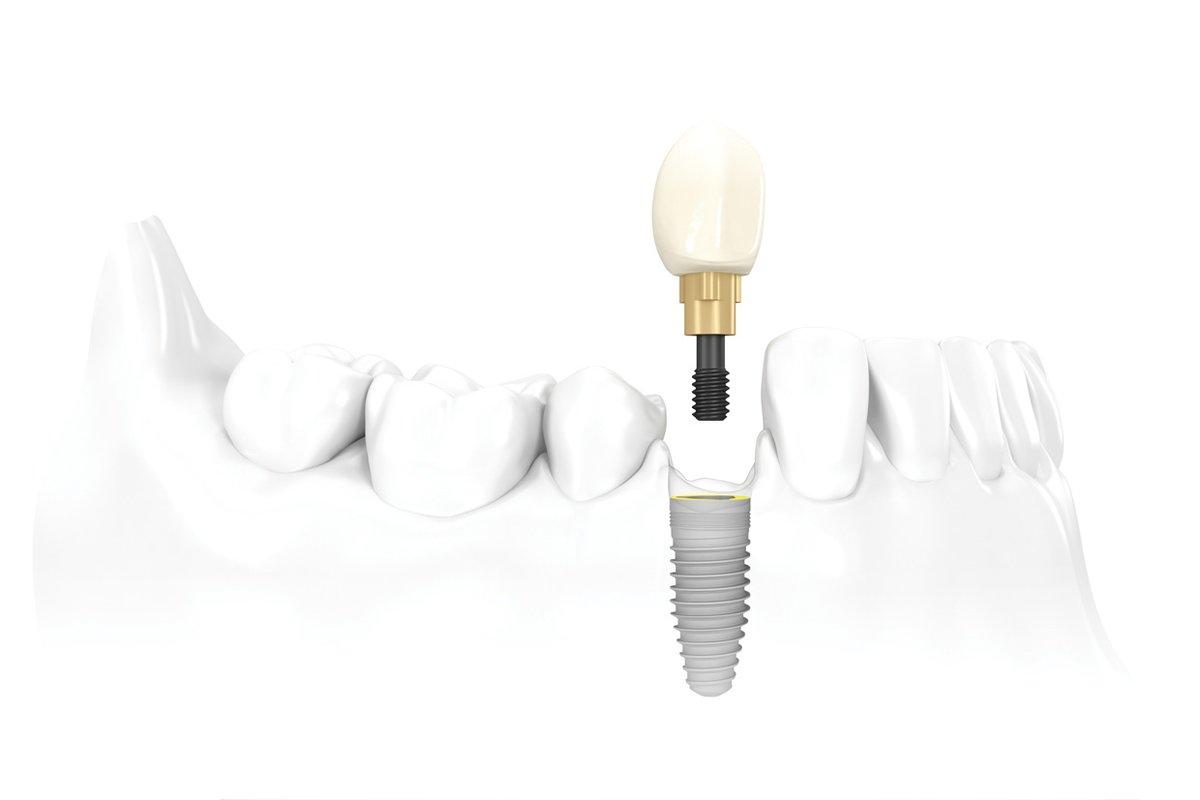 Recomandari dupa inserarea implanturilor dentare