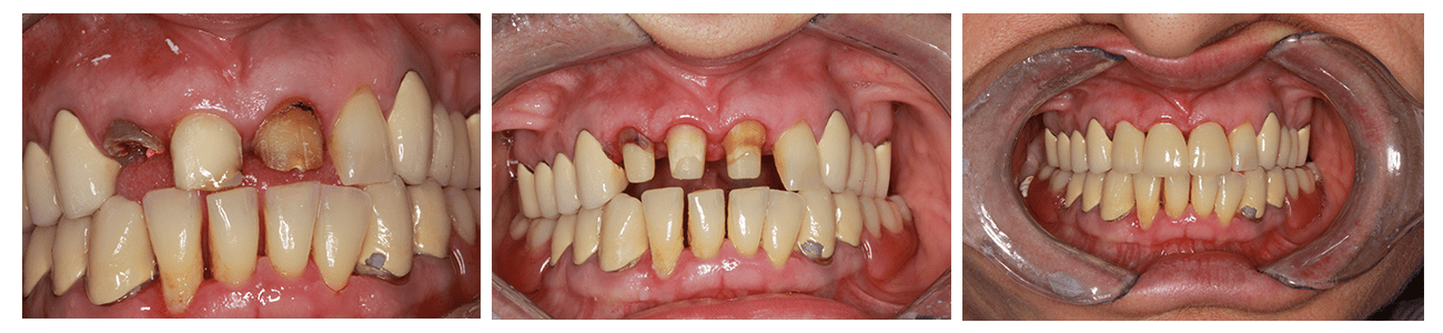 dinti-distrusi-carie-dentara