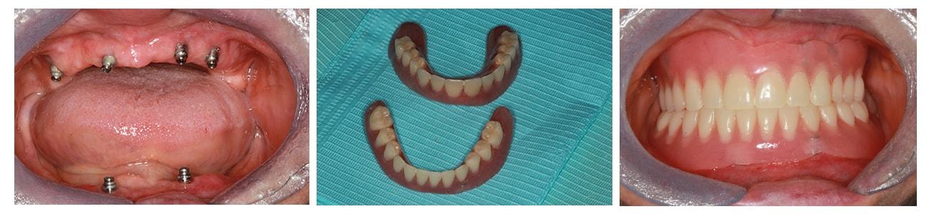 edentatii-totale-ambele-maxilare