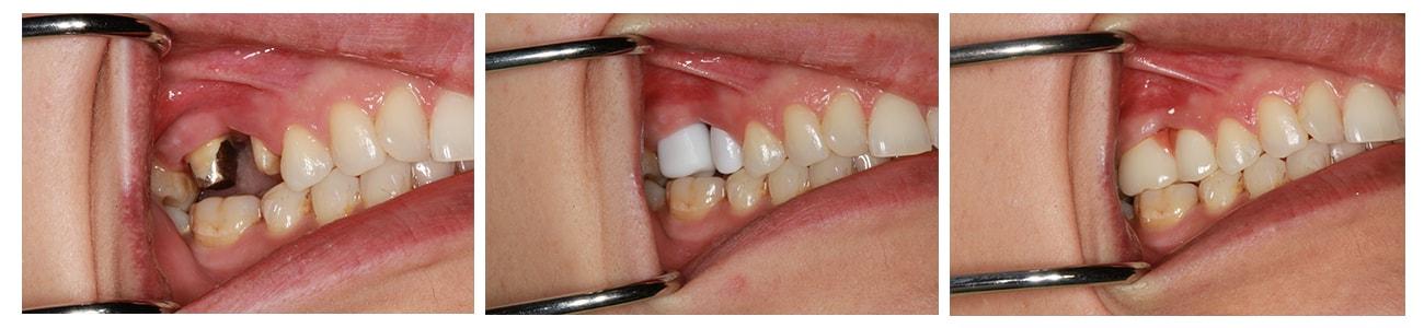 fractura-primul-molar